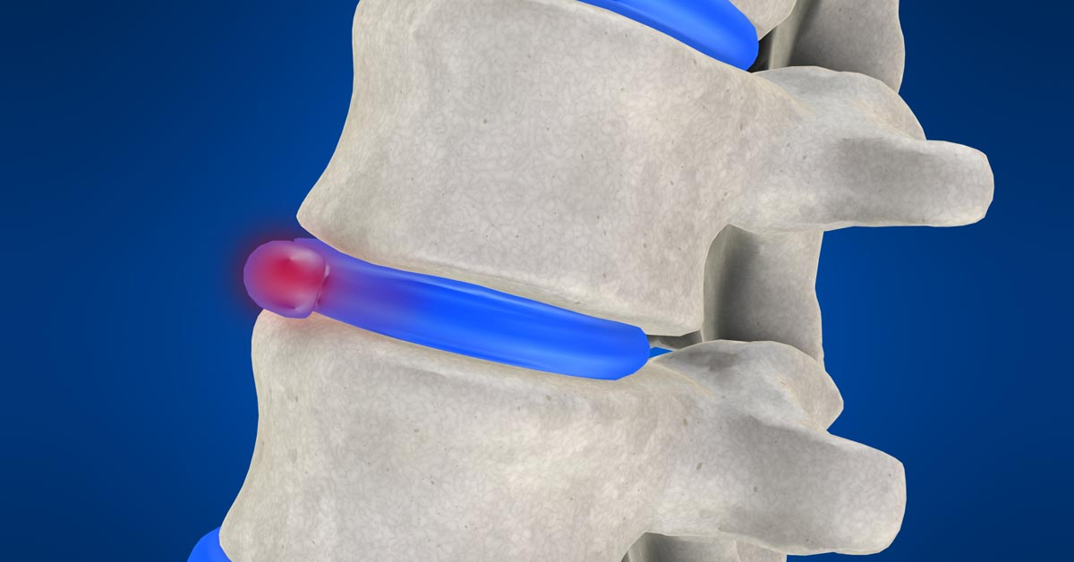 West New York non-surgical disc herniation treatment